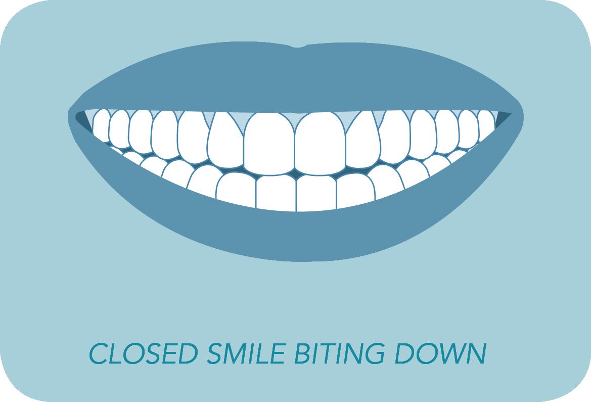 closed smile biting down