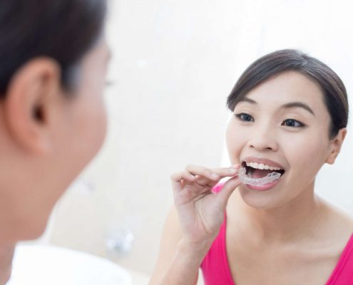 Woman puts in her invisible braces or aligners known as Impressions