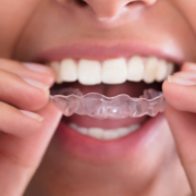 Woman putting in her Impressions invisible aligners in North Carolina