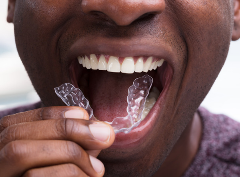Man using invisible aligners to straighten his teeth at home