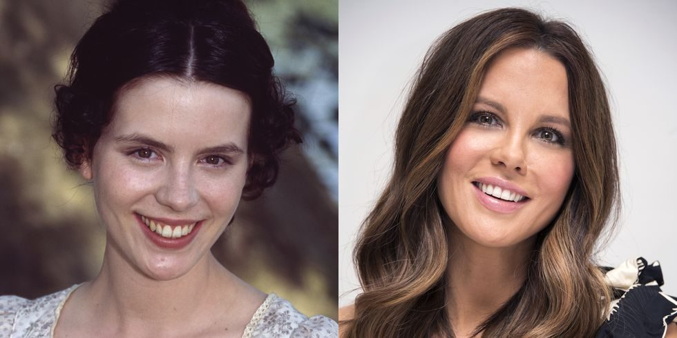 Before and after picture of Kate Beckinsale smiling