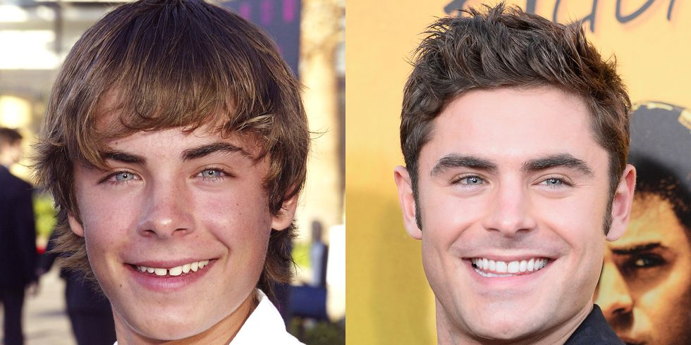 Picture of Zack Efron smiling