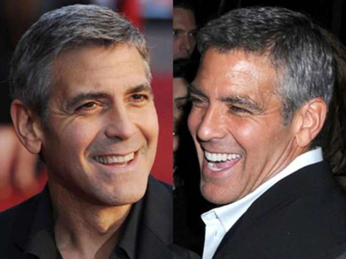 Before and after pictures of George Clooney smiling