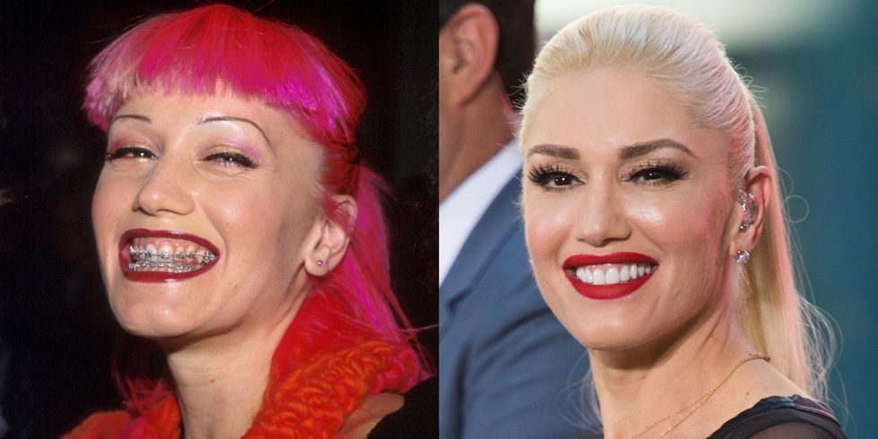 Before and after picture of Gwen Stefani smiling