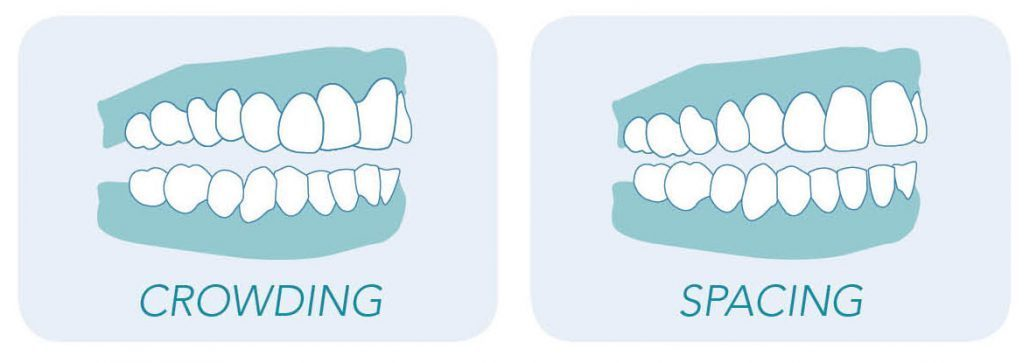 Graphics portraying teeth crowding and spacing