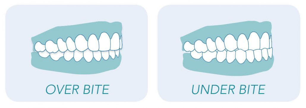 Graphic showing teeth overbites and under bites