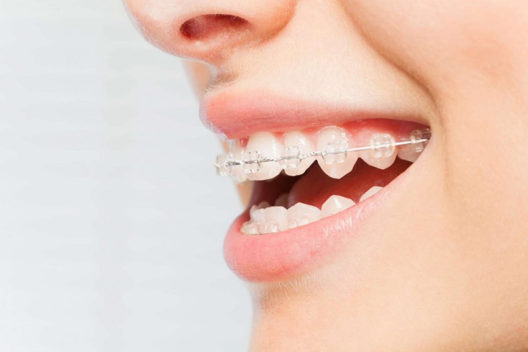 South Bay Invisalign®
