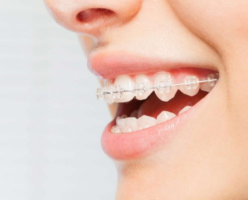Person with braces looks for cheaper alternative to straighten teeth at home
