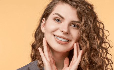 How Long Do Braces Take To Straighten Teeth | Impressions ...